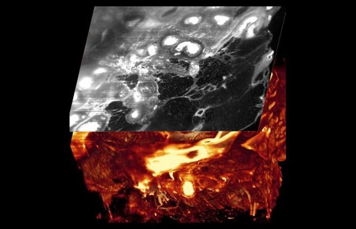 Der dreidimensionale Blick in den Tumor